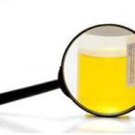 Значение анализа мочи в исследовании здоровья человека