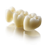 Безметалловая керамика в стоматологии. Преимущества и недостатки